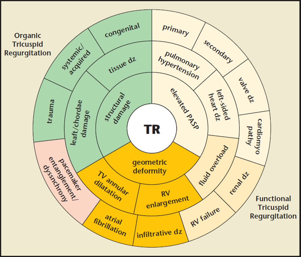 Tricuspid Regurgitation, the Forgotten Valvular Lesion—A ...